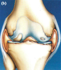 Arthroscopy of the knee joint4.jpg